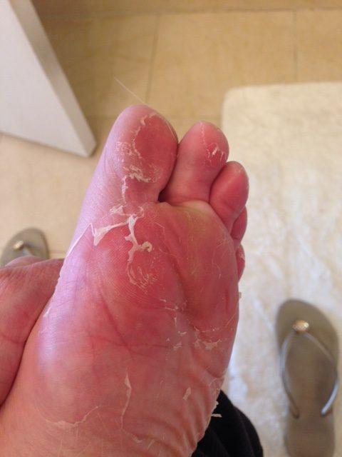 Feet3